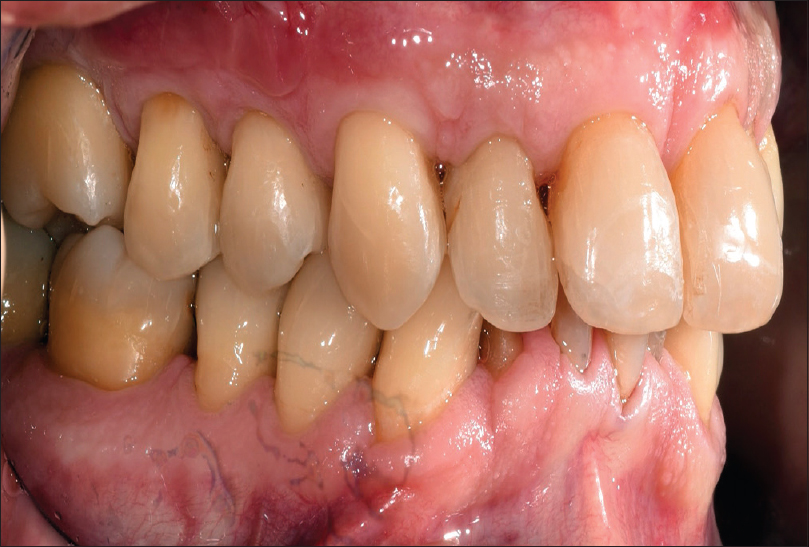 Figure 10: The patient at 9-month posttreatment with the Gum Drop Technique demonstrating stability of the root recession treatment performed with complete root coverage
