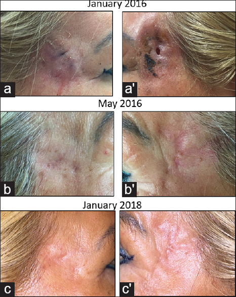 Application of liquid platelet-rich fibrin for treating hyaluronic