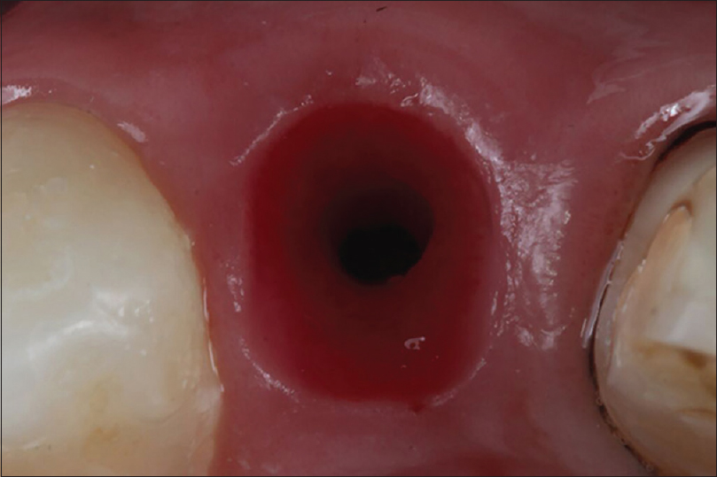 Figure 6:  Peri-implant mucosae aspect 15 days after healing